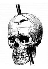 phineas gage tamping iron through skull image