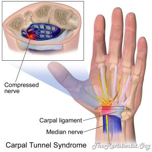 showing site of carpal tunnel syndrome