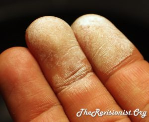 fingers turn white when exposed to hydrogen peroxide