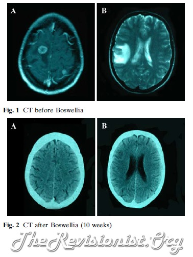 Before After CT Scan Brain Tumor Boswellia Serrata